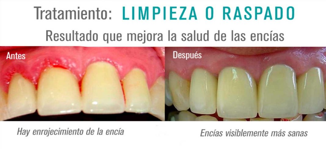 sarro dental